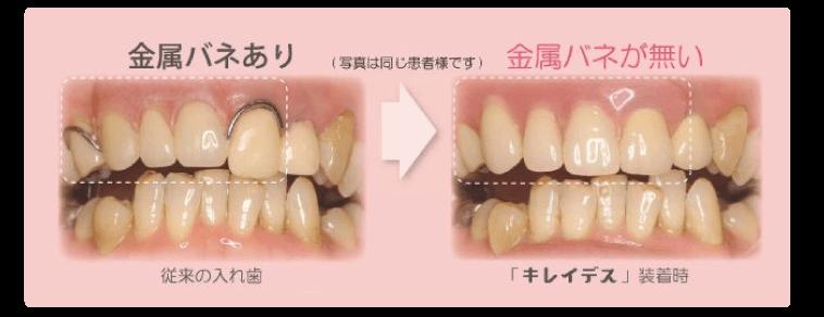 「金属バネが無い、薄くて軽い」これまでになかった、新しい部分入れ歯です。